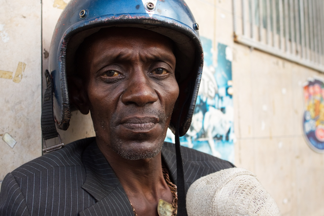 Image Caption: Portrait of 'Mars', leaning on the wall of a grocery on Western Main Road, Saint James. With a helmet on, ID card chained around his neck, and a bandaged knee, he describes his past days of playing steelpan on Piccadilly Street, Port of Spain. 6th May, 2017.—Click to read this article.